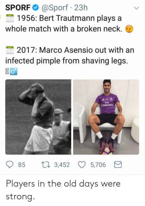 Shaving Legs: SPORF @Sporf 23h  1956: Bert Trautmann plays a  whole match with a broken neck.  2017: Marco Asensio out with an  infected pimple from shaving legs.  FV  Emirate5  85 t 3,452 5,706 Players in the old days were strong.