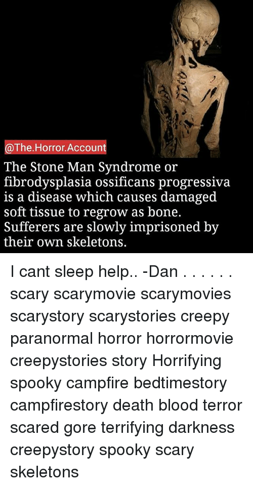 The Horror Account the Stone Man Syndrome or Fibrodysplasia