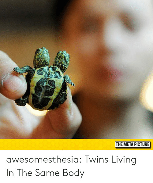 Tumblr, Twins, and Blog: THE META PICTURE awesomesthesia:  Twins Living In The Same Body