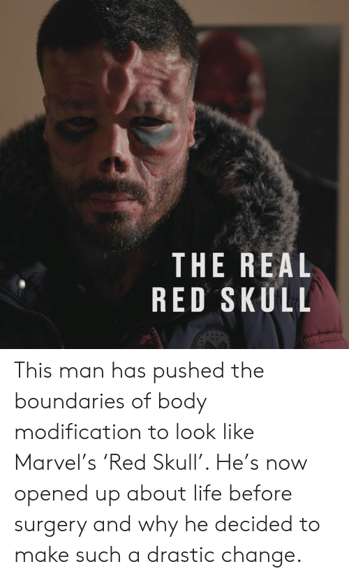 Dank, Life, and Marvel: THE REAL  RED SKULL This man has pushed the boundaries of body modification to look like Marvel's 'Red Skull'. He's now opened up about life before surgery and why he decided to make such a drastic change.