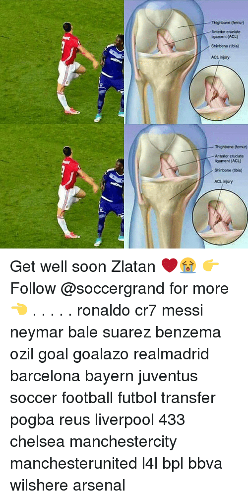 bpl: Thighbone (temur)  Anterior cruciate  ligamant (ACL)  Shinbone (tbia)  ACL injury  Thighbone (termur)  Anterior chucdate  bgarmont (ACLJ  Shinbone (bia)  ACL injury Get well soon Zlatan ❤😭 👉Follow @soccergrand for more👈 . . . . . ronaldo cr7 messi neymar bale suarez benzema ozil goal goalazo realmadrid barcelona bayern juventus soccer football futbol transfer pogba reus liverpool 433 chelsea manchestercity manchesterunited l4l bpl bbva wilshere arsenal