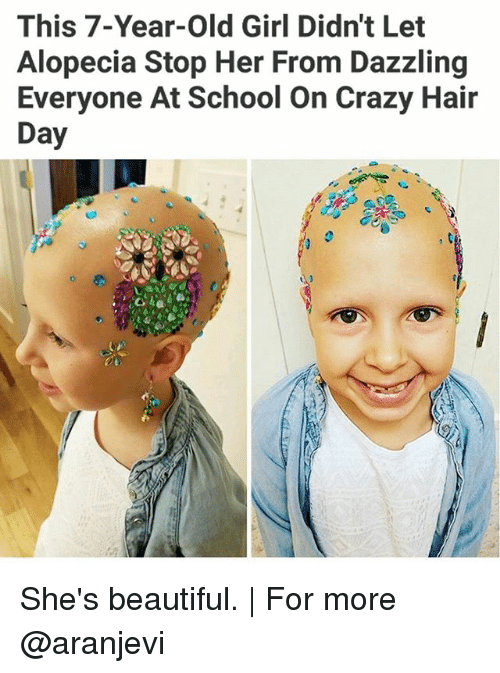 alopecia: This 7-Year-old Girl Didn't Let  Alopecia Stop Her From Dazzling  Everyone At School on Crazy Hair  Day She's beautiful. | For more @aranjevi