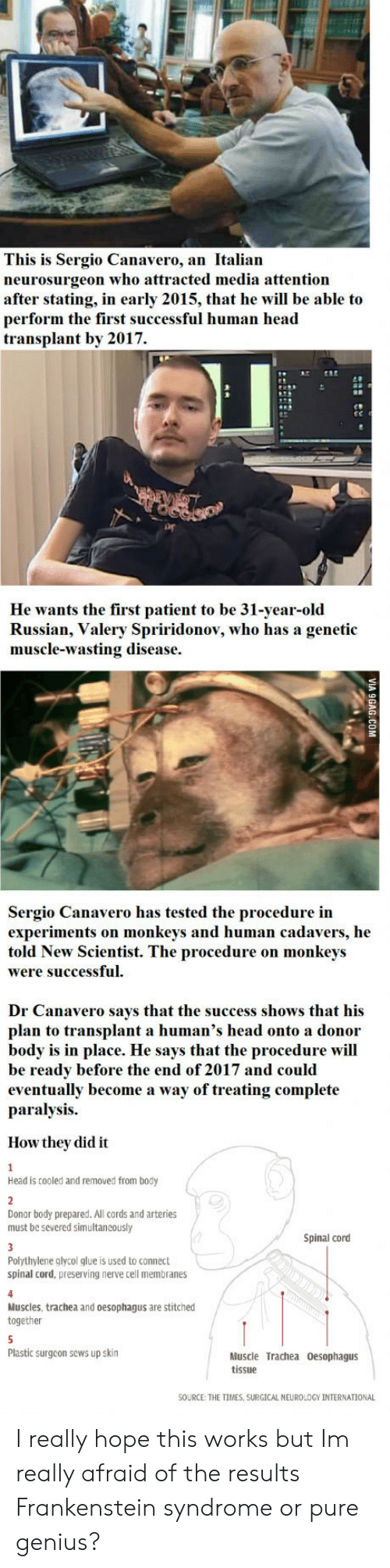 neurology: This is Sergio Canavero, an Italian  neurosurgeon who attracted media attention  after stating, in early 2015, that he will be able to  perform the first successful human head  transplant by 2017.  He wants the first patient to be 31-year-old  Russian, Valery Spriridonov, who has a genetic  muscle-wasting disease.  Sergio Canavero has tested the procedure in  experiments on monkeys and human cadavers, he  told New Scientist. The procedure on monkeys  were successful.  Dr Canavero says that the success shows that his  plan to transplant a human's head onto a donor  body is in place. He says that the procedure will  be ready before the end of 2017 and could  eventually become a way of treating complete  paralysis.  How they did it  Head is cooled and removed from body  Donor body prepared. All cords and arteries  must be severed simultaneously  Spinal cord  Polythylene glycol glue is used to connect  spinal cord, preserving nerve cell membranes  Muscles, trachea and oesophagus are stitched  together  Plastic surgeon sews up skin  Muscle Trachea Oesophagus  tissue  SOURCE: THE TIMES, SURGICAL NEUROLOGY İNTERNATİONAL I really hope this works but Im really afraid of the results Frankenstein syndrome or pure genius?