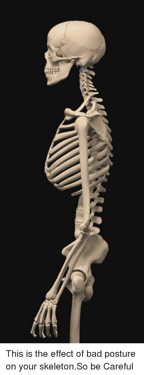 posturing: This is the effect of bad posture on your skeleton.So be Careful