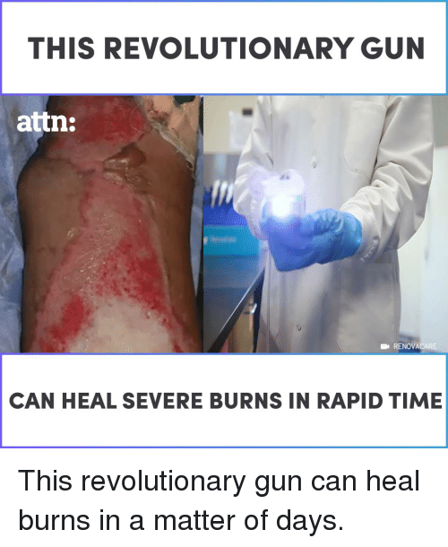 attn: THIS REVOLUTIONARY GUN  attn:  RENOVACARE  CAN HEAL SEVERE BURNS IN RAPID TIME This revolutionary gun can heal burns in a matter of days.