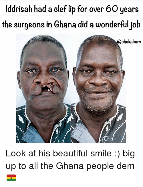 Didly: Uddrisah had a clef lib for over 60 years  the surgeons in Ghana did a wonderfuljob  @chakabars Look at his beautiful smile :) big up to all the Ghana people dem 🇬🇭