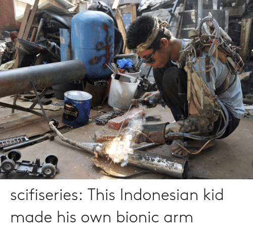 Indonesian: UNIVERS scifiseries:  This Indonesian kid made his own bionic arm
