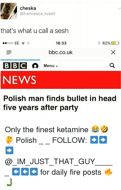 Weå›: WEA Cheska  do rose0  (a francesca that's what u call a sesh  18:33  EE  62%  bbc.co.uk  Menu  NEWS  Polish man finds bullet in head  five years after party Only the finest ketamine 😂🤣🤔 Polish _ _ FOLLOW: ➡➡➡@_IM_JUST_THAT_GUY_____ ⬅⬅⬅ for daily fire posts 🔥🤳🏼