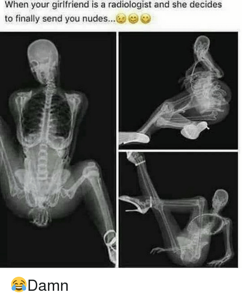 Sended: When your girlfriend is a radiologist and she decides  to finally send you nudes 😂Damn