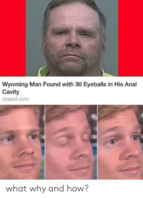 eyeballs: Wyoming Man Found with 30 Eyeballs in His Anal  Cavity  crazed.com what why and how?